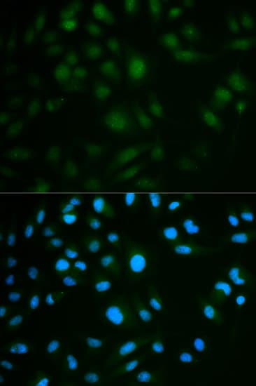 Immunocytochemistry/ Immunofluorescence - Anti-IL-23R antibody (ab175072)