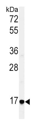 Western blot - Anti-EREG antibody - C-terminal (ab175118)