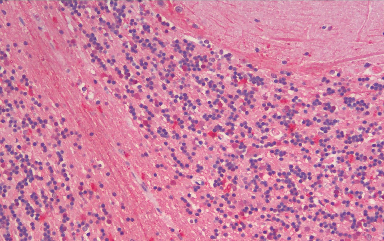 Immunohistochemistry (Formalin/PFA-fixed paraffin-embedded sections) - Anti-ZNRF1 antibody (ab175125)