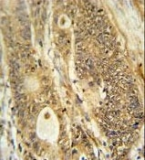 Immunohistochemistry (Formalin/PFA-fixed paraffin-embedded sections) - Anti-Advillin antibody - N-terminal (ab175126)