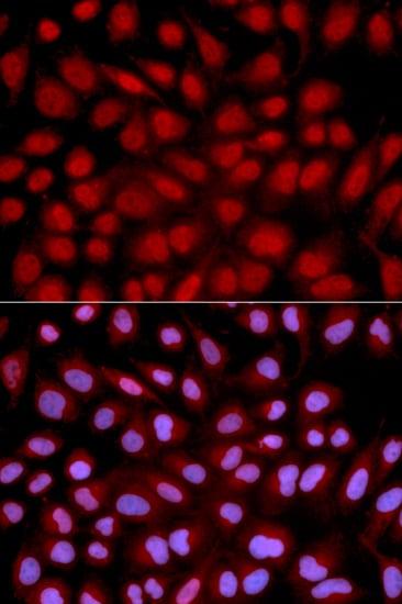 Immunocytochemistry/ Immunofluorescence - Anti-NFAT2 antibody (ab175134)