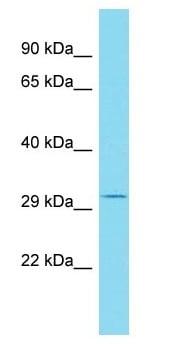 Western blot - Anti-RSG1 antibody - N-terminal (ab175138)