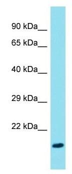 Western blot - Anti-FAM107B antibody (ab175148)
