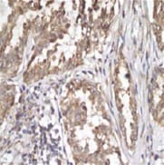 Immunohistochemistry (Formalin/PFA-fixed paraffin-embedded sections) - Anti-Sonic Hedgehog antibody [EP1190Y] - BSA and Azide free (ab175180)