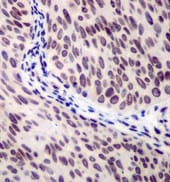 Immunohistochemistry (Formalin/PFA-fixed paraffin-embedded sections) - Anti-53BP1 antibody [EPR2173(2)] (ab175188)
