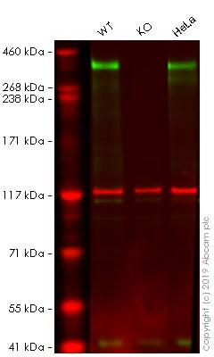 Western blot - Anti-53BP1 antibody [EPR2173(2)] (ab175188)