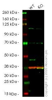 Western blot - Anti-PDK1 antibody [EPR13009] (ab175190)