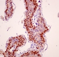 Immunohistochemistry (Formalin/PFA-fixed paraffin-embedded sections) - Anti-SCP1 antibody [EP7918] (ab175191)