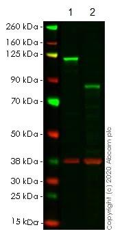 Western blot - Anti-NFkB p100/NFKB2 antibody [EPR4686-66] (ab175192)