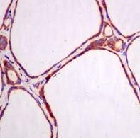 Immunohistochemistry (Formalin/PFA-fixed paraffin-embedded sections) - Anti-ERp29 antibody [EPR12985] (ab175193)