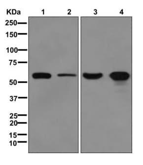 Western blot - Anti-GDI1 antibody [EPR13196(B)] (ab175194)