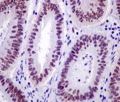 Immunohistochemistry (Formalin/PFA-fixed paraffin-embedded sections) - Anti-DNA Polymerase beta antibody [EPR12722(B)] (ab175197)