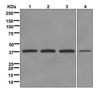 Western blot - Anti-DNA Polymerase beta antibody [EPR12722(B)] (ab175197)