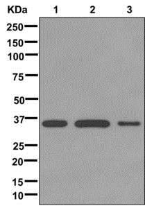 Western blot - Anti-Dlx4/BP1 antibody [EPR9263] (ab175218)