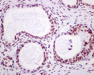 Immunohistochemistry (Formalin/PFA-fixed paraffin-embedded sections) - Anti-Dlx4/BP1 antibody [EPR9263] (ab175218)