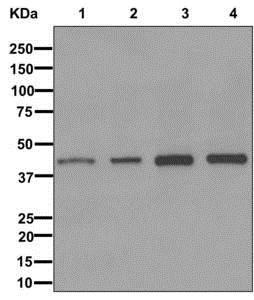 Western blot - Anti-ITPK1 antibody [EPR10631] (ab175222)