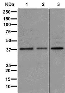 Western blot - Anti-SYNPR antibody [EPR11472] (ab175224)
