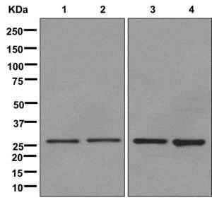 Western blot - Anti-SDHB antibody [EPR10880] (ab175225)