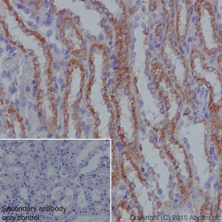 Immunohistochemistry (Formalin/PFA-fixed paraffin-embedded sections) - Anti-SDHB antibody [EPR10880] (ab175225)