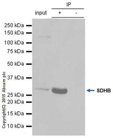 Immunoprecipitation - Anti-SDHB antibody [EPR10880] (ab175225)