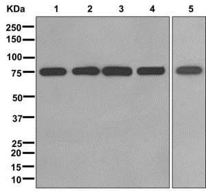 Western blot - Anti-ZNF160 antibody [EPR12523] (ab175227)