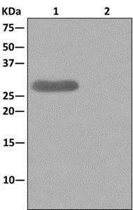 Immunoprecipitation - Anti-CLIC2 antibody [EPR6494] (ab175230)