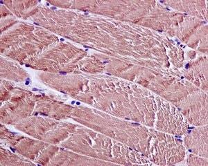 Immunohistochemistry (Formalin/PFA-fixed paraffin-embedded sections) - Anti-CAPZA1 antibody [EPR11210-4R] (ab175233)