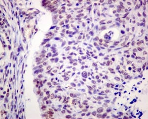 Immunohistochemistry (Formalin/PFA-fixed paraffin-embedded sections) - Anti-SMCHD1 antibody [EPR12340] (ab175235)
