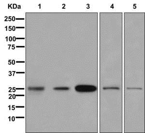 Western blot - Anti-Oligodendrocyte Specific Protein antibody [EPR12726] (ab175236)