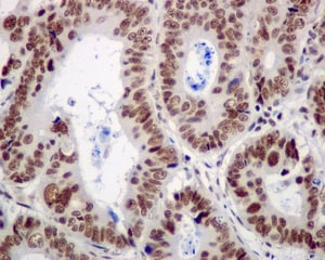 Immunohistochemistry (Formalin/PFA-fixed paraffin-embedded sections) - Anti-CPSF6 antibody [EPR12898] (ab175237)