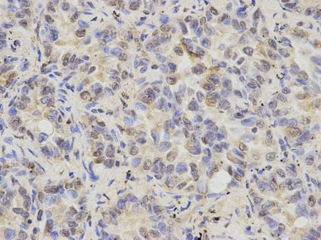 Immunohistochemistry (Formalin/PFA-fixed paraffin-embedded sections) - Anti-Cytokeratin 8 antibody (ab175249)