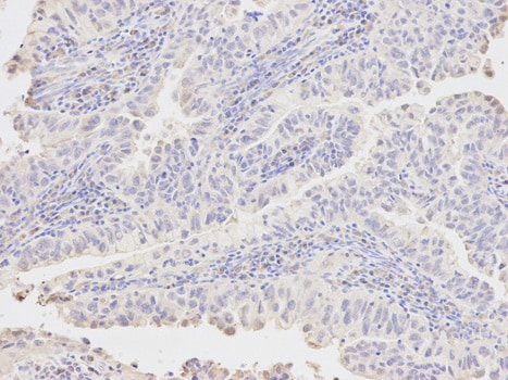 Immunohistochemistry (Formalin/PFA-fixed paraffin-embedded sections) - Anti-AKR1A1 antibody (ab175258)