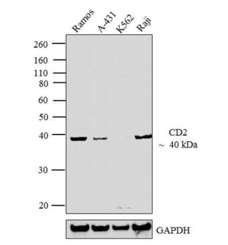 Western blot - Anti-CD2 antibody [TS218] - BSA and Azide free (ab175287)