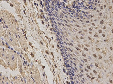 Immunohistochemistry (Formalin/PFA-fixed paraffin-embedded sections) - Anti-NOXA2/p67phox antibody (ab175293)