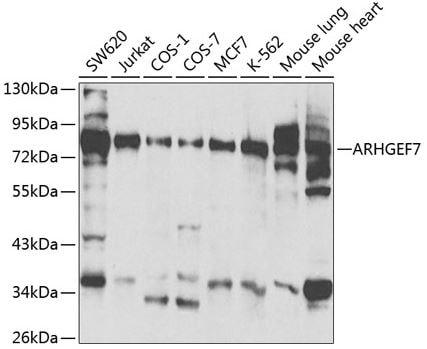 Western blot - Anti-ARHGEF7 antibody (ab175306)