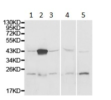 Western blot - Anti-ADA antibody (ab175310)