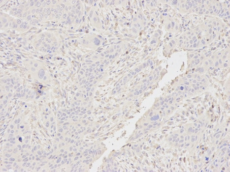 Immunohistochemistry (Formalin/PFA-fixed paraffin-embedded sections) - Anti-CSRP1 antibody (ab175319)