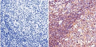 Immunohistochemistry (Formalin/PFA-fixed paraffin-embedded sections) - Anti-Lin28 antibody (ab175352)