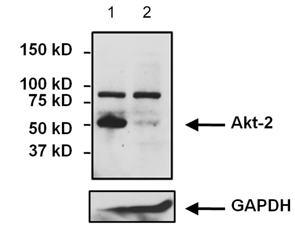 Western blot - Anti-AKT2 antibody [4H7] (ab175354)