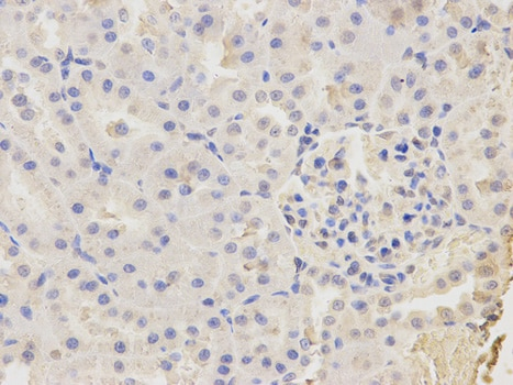 Immunohistochemistry (Formalin/PFA-fixed paraffin-embedded sections) - Anti-CAPZA2 antibody (ab175378)