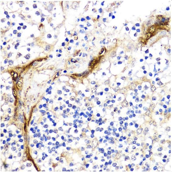 Immunohistochemistry (Formalin/PFA-fixed paraffin-embedded sections) - Anti-BMPR1B antibody (ab175385)