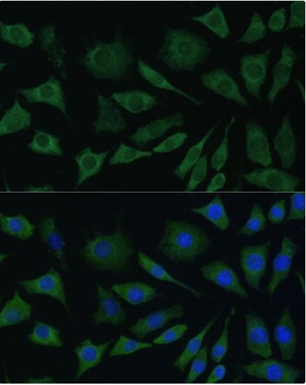 Immunocytochemistry/ Immunofluorescence - Anti-BMPR1B antibody (ab175385)
