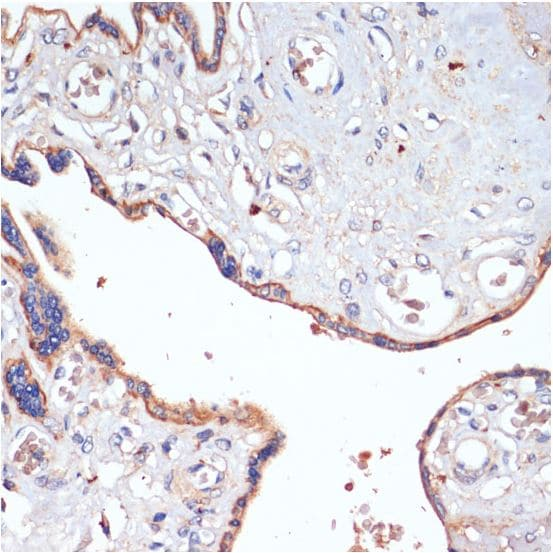 Immunohistochemistry (Formalin/PFA-fixed paraffin-embedded sections) - Anti-CD47 antibody (ab175388)