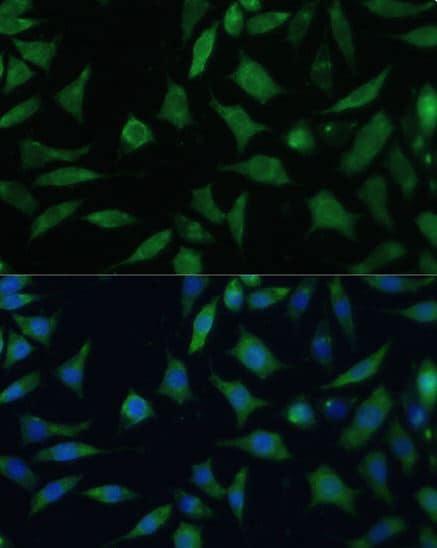 Immunocytochemistry/ Immunofluorescence - Anti-CD47 antibody (ab175388)