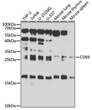 Western blot - Anti-CD69 antibody (ab175391)