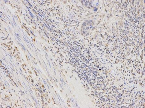 Immunohistochemistry (Formalin/PFA-fixed paraffin-embedded sections) - Anti-Aldose reductase antibody (ab175394)