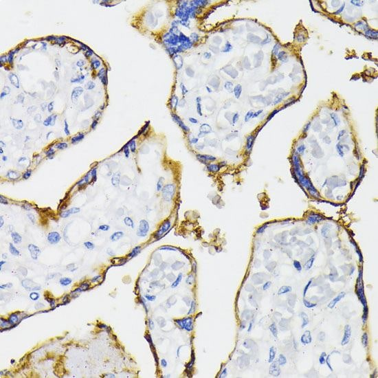 Immunohistochemistry (Formalin/PFA-fixed paraffin-embedded sections) - Anti-CD73 antibody (ab175396)
