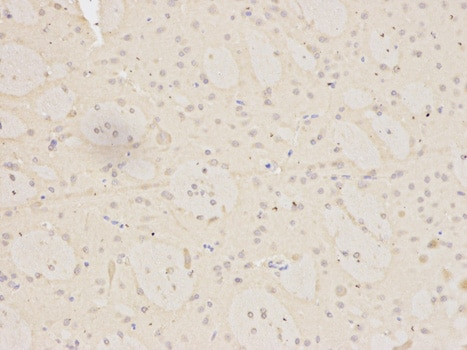 Immunohistochemistry (Formalin/PFA-fixed paraffin-embedded sections) - Anti-MNAT1 antibody (ab175398)