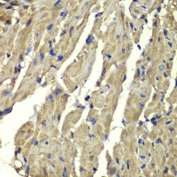 Immunohistochemistry (Formalin/PFA-fixed paraffin-embedded sections) - Anti-Frataxin antibody (ab175402)