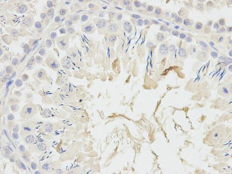 Immunohistochemistry (Formalin/PFA-fixed paraffin-embedded sections) - Anti-ADH5 antibody (ab175406)